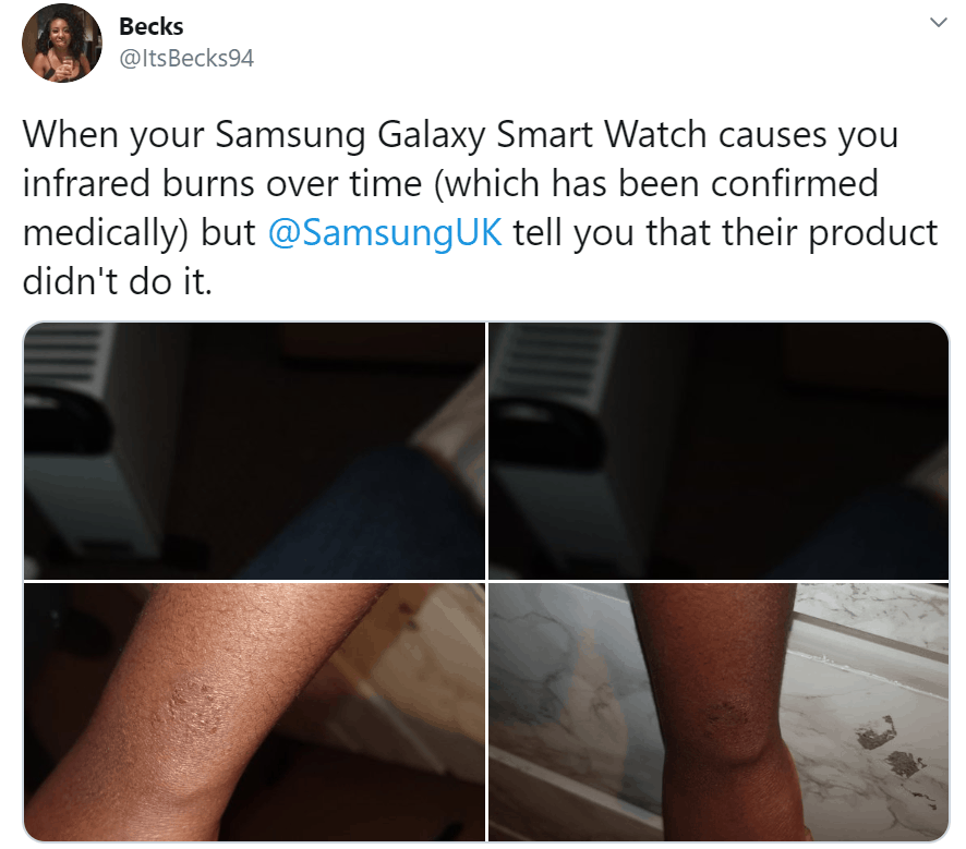 Galaxy Watch Burn and Rashes