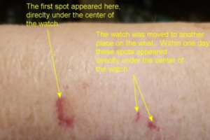 Galaxy Watch Active 2 caused red spot on a user's wrist