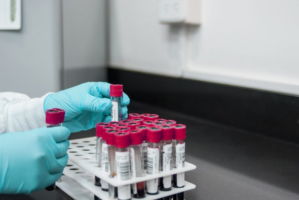 Michael Osterholm Flu pandemic COVID